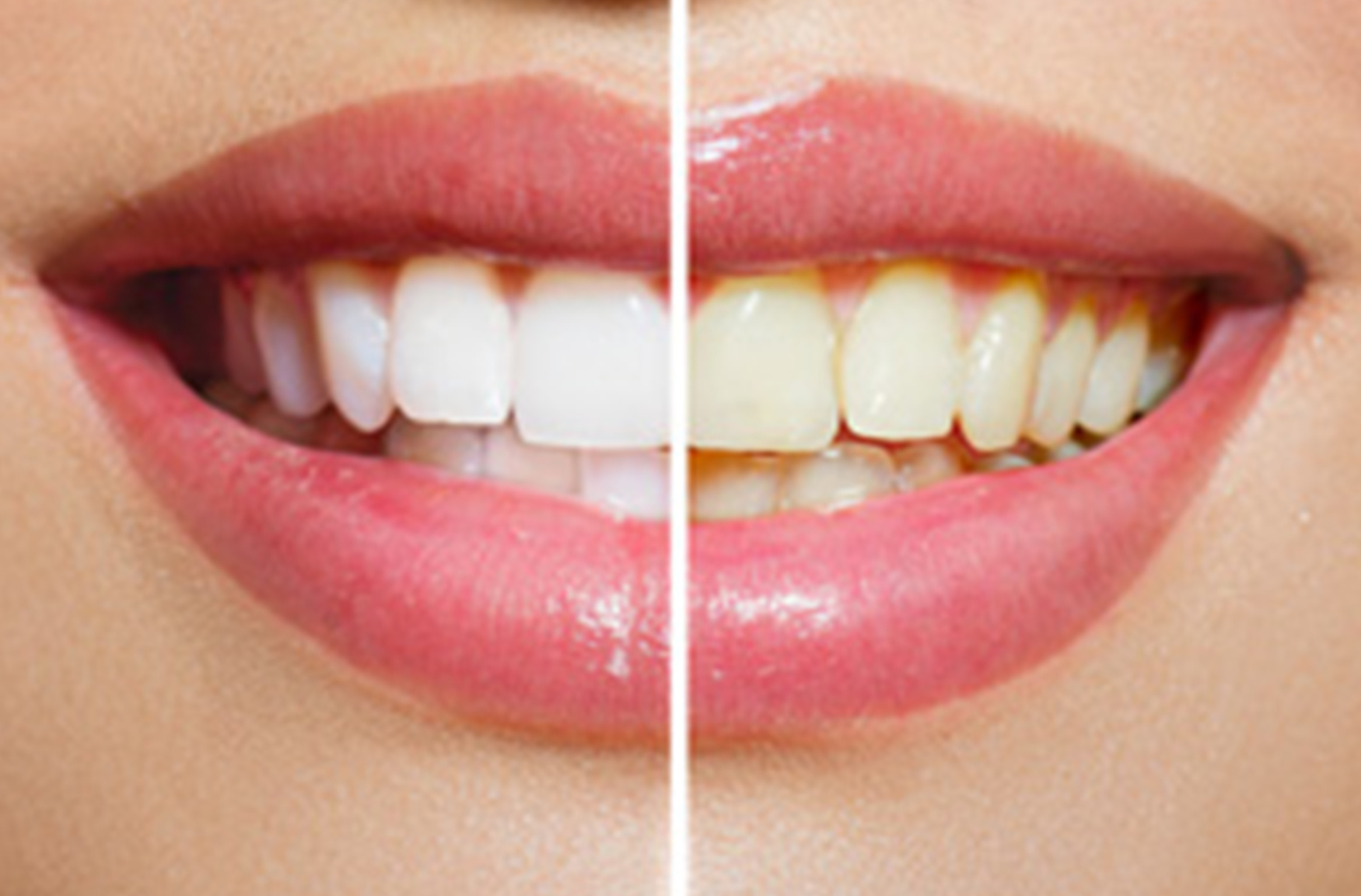 Removal of dental calculus