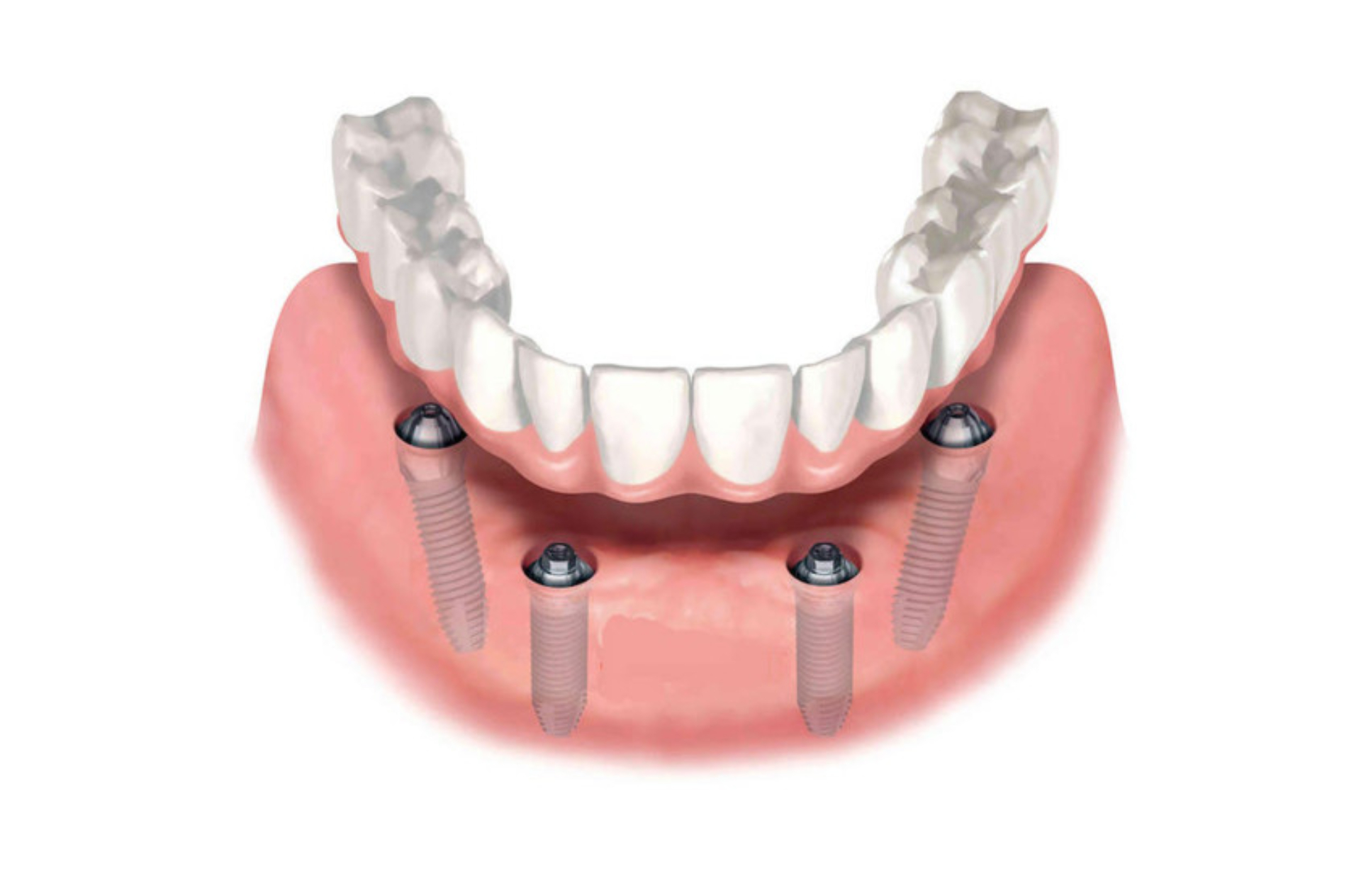 All-on-4 (implantati, multiunit suprastrukture, privremeni zubi) po vilici
