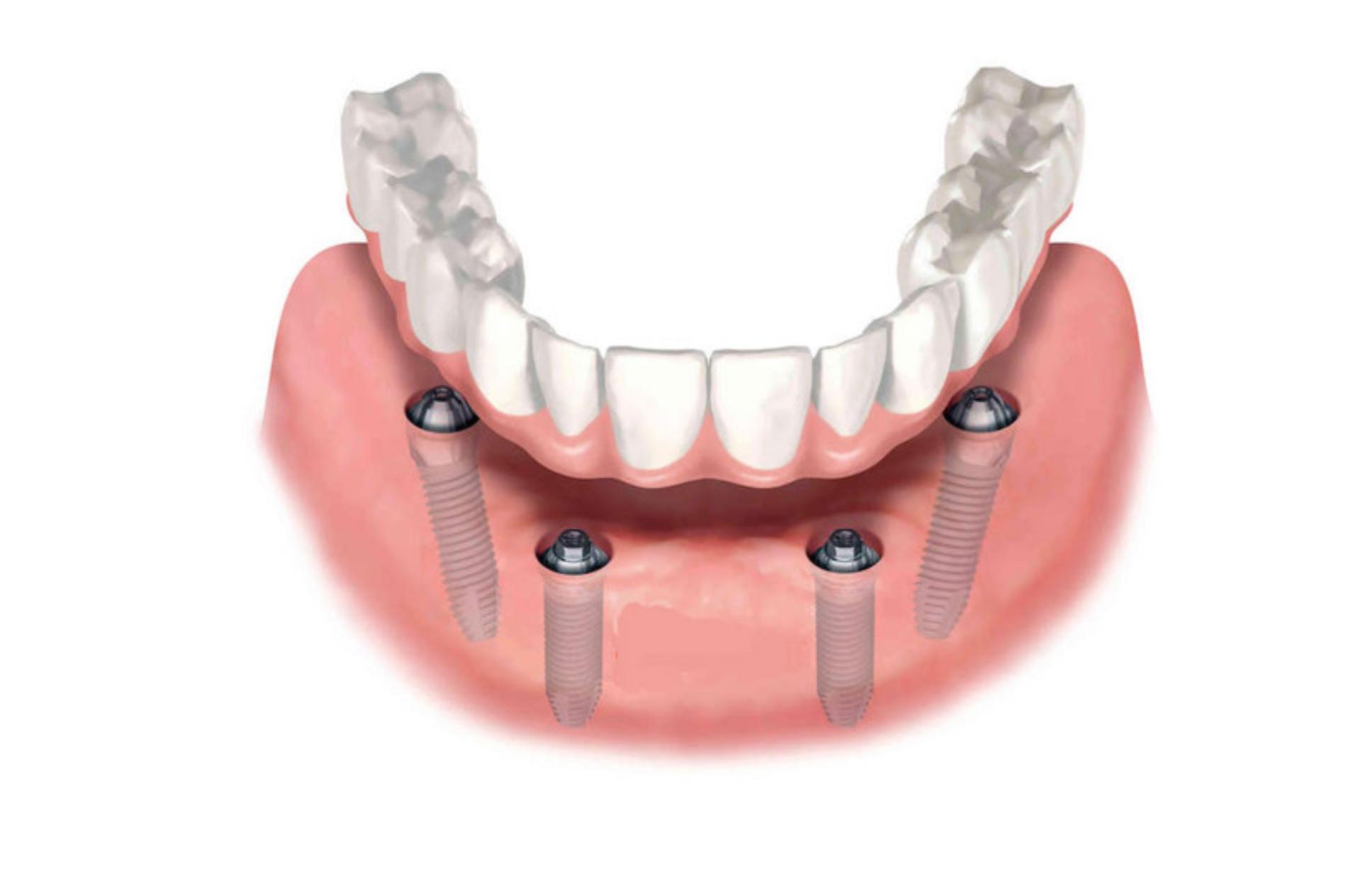 All-on-4 (samo implantati)