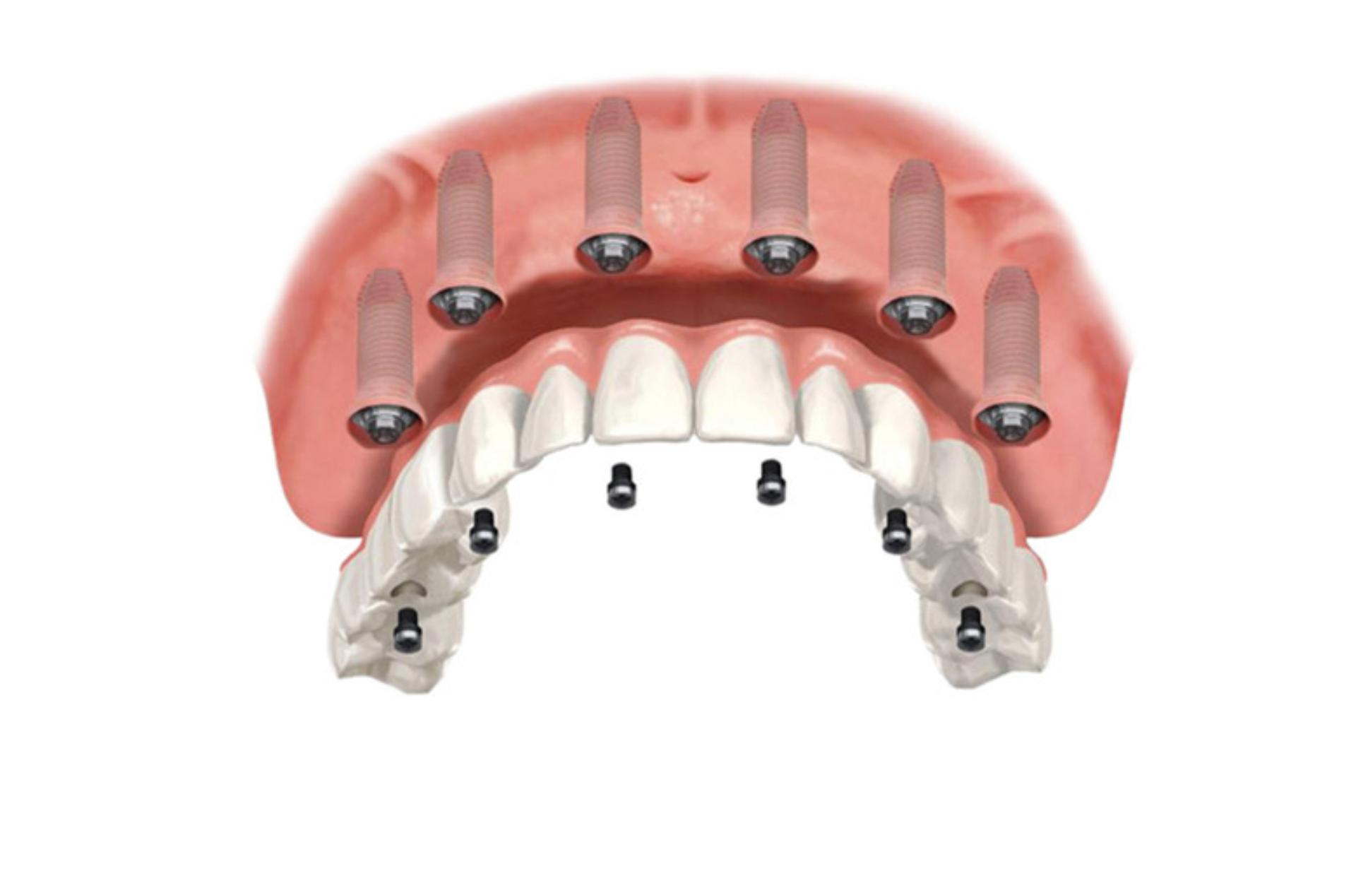 All-on-6 (samo implantati)
