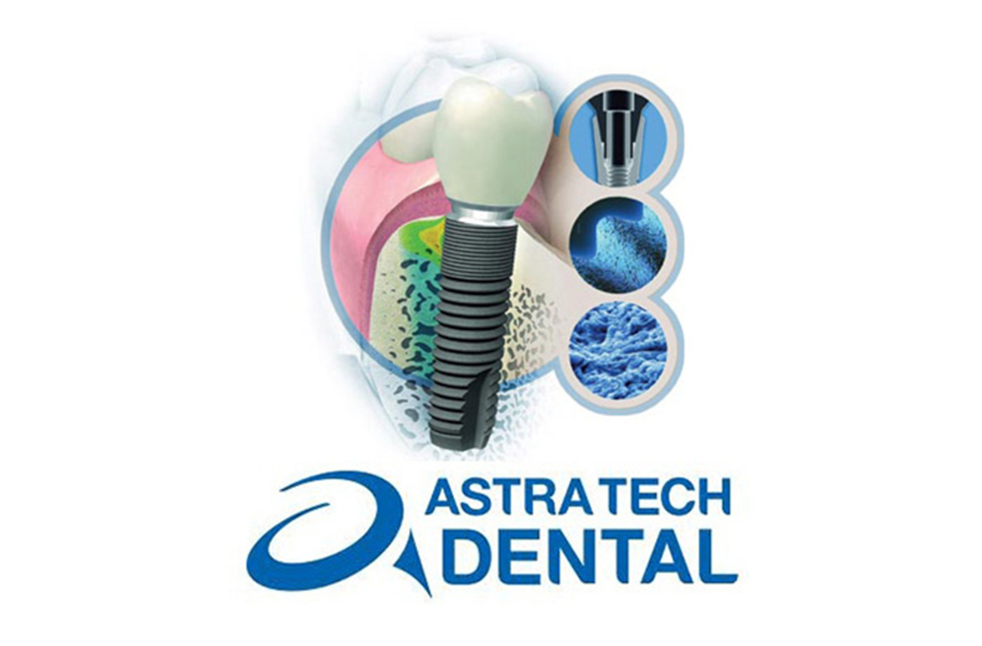 Astra Tech implant insertion