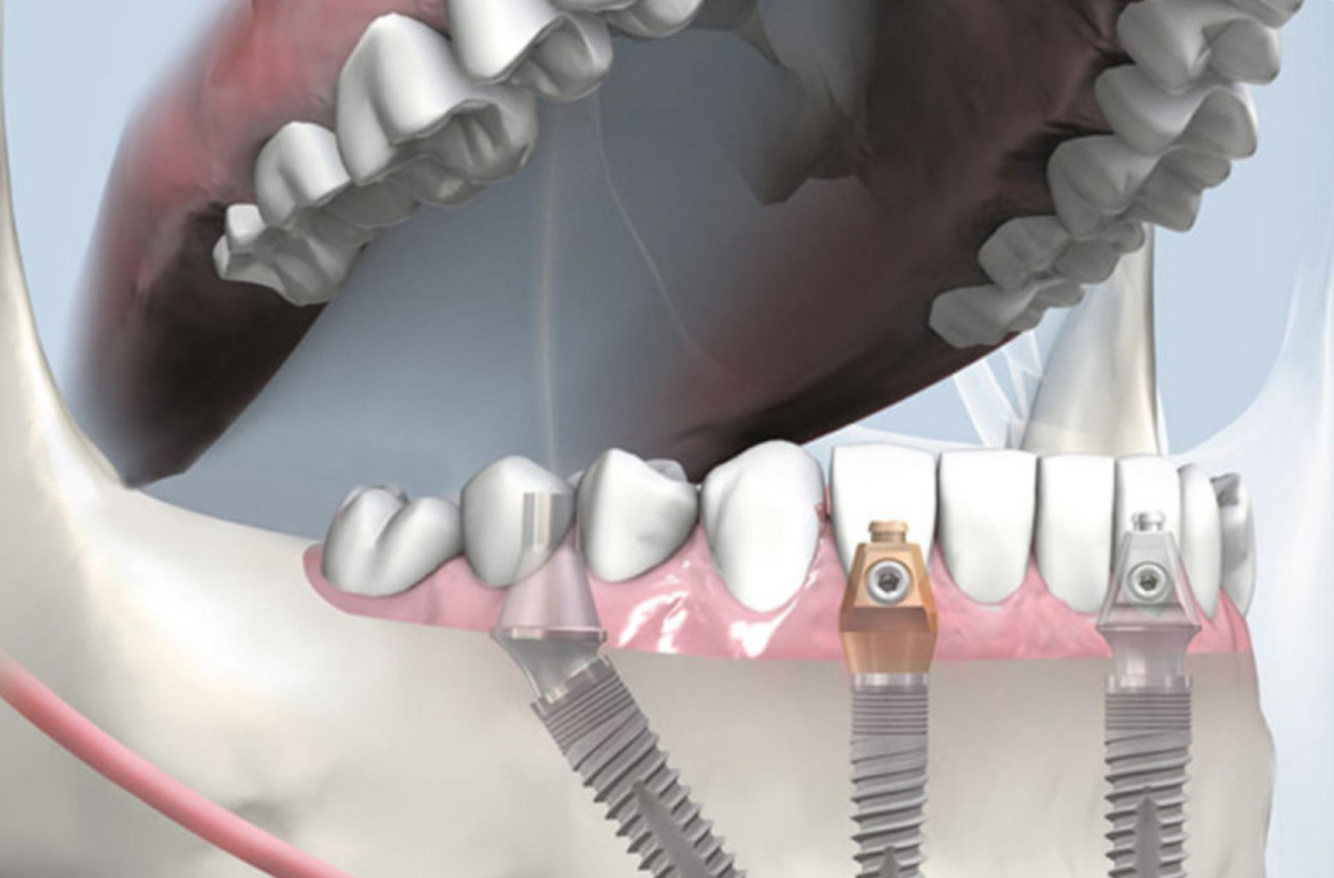 Bredent implant insertion