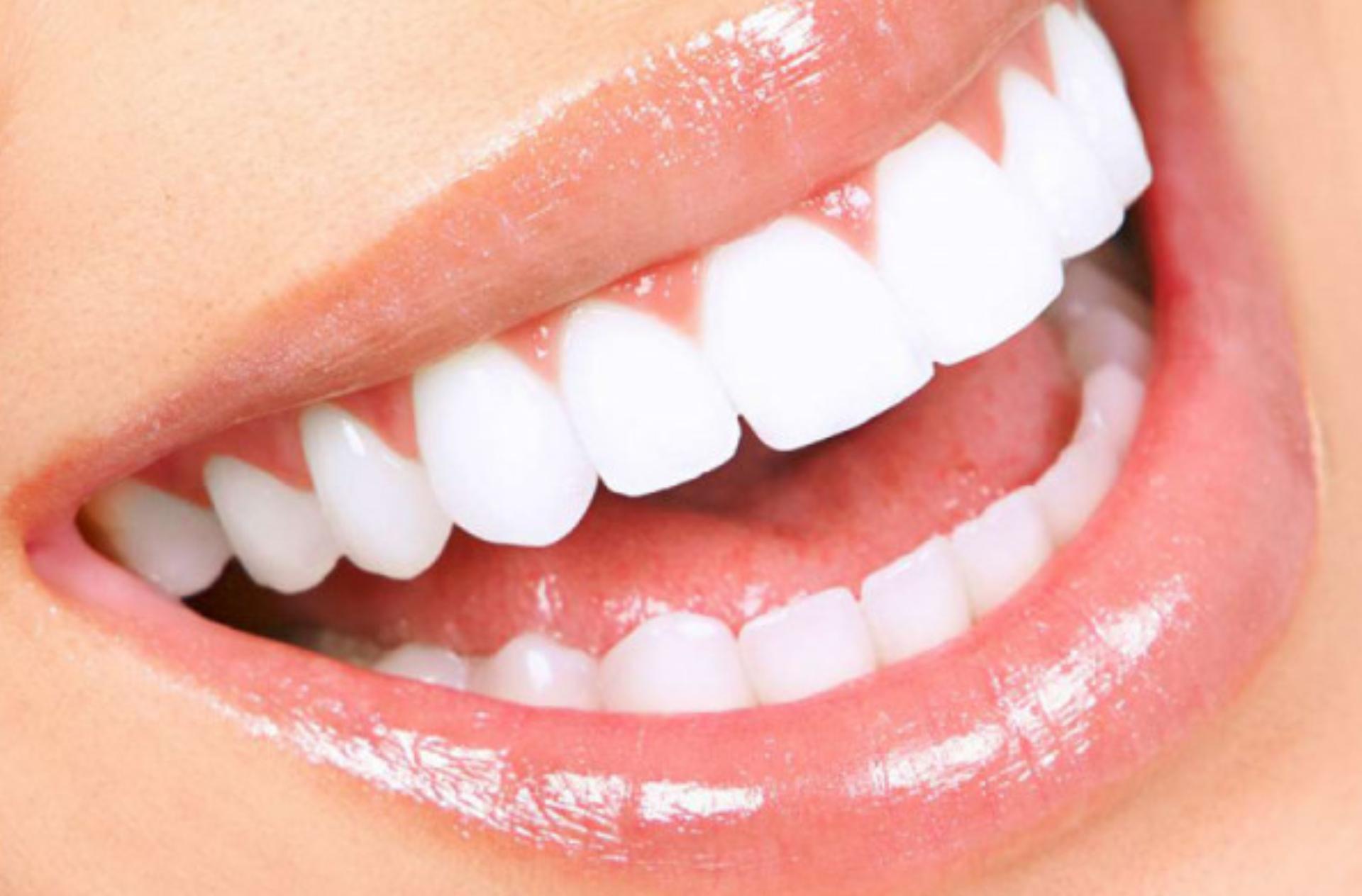 Da Vincis smile reconstruction protocol by Apostoloski