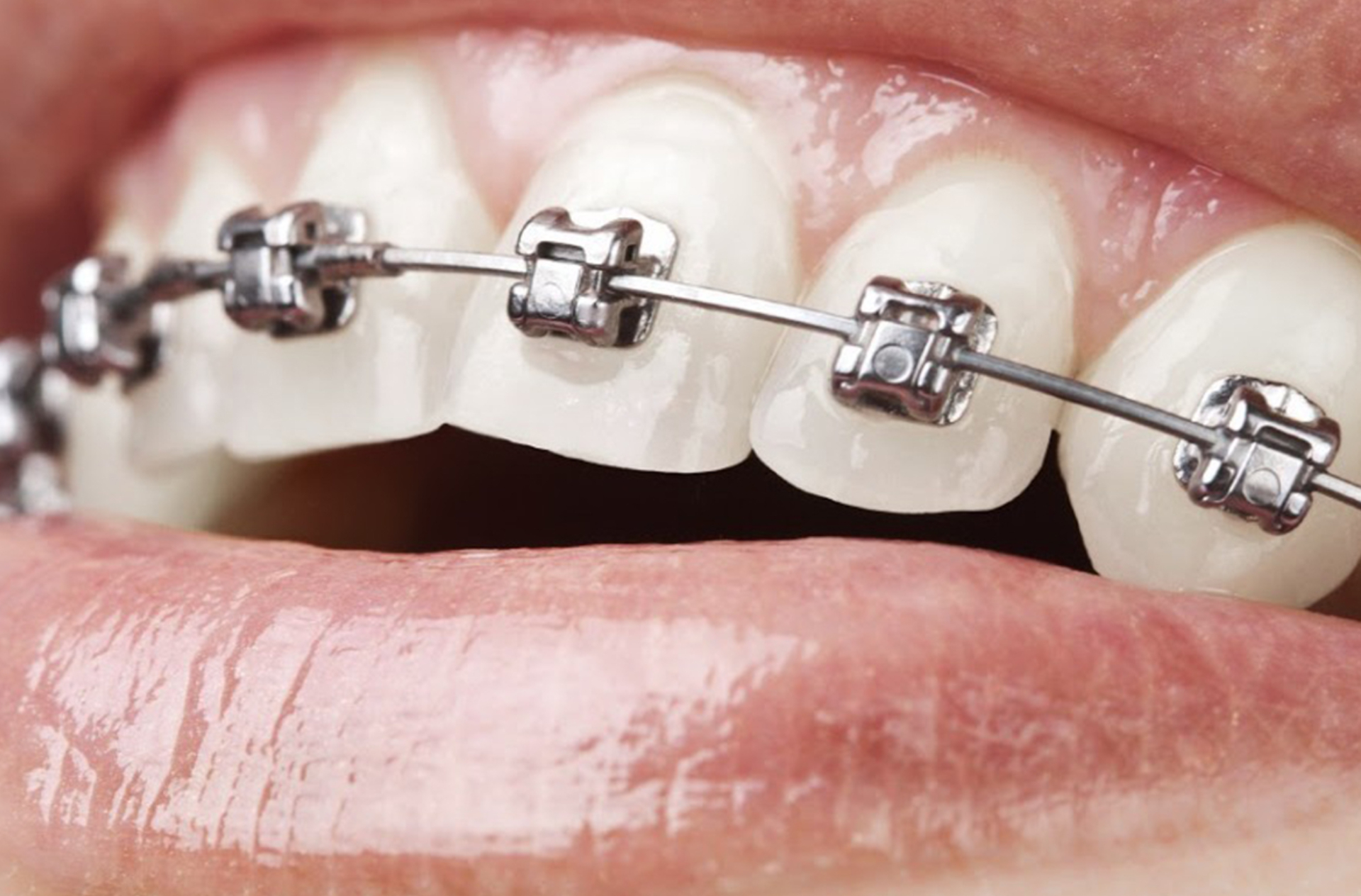Damon metal orhtodontic device (one jaw)