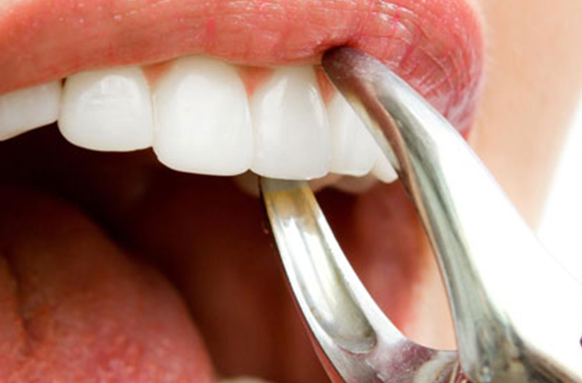 Ekstrakcija (vađenje) zuba