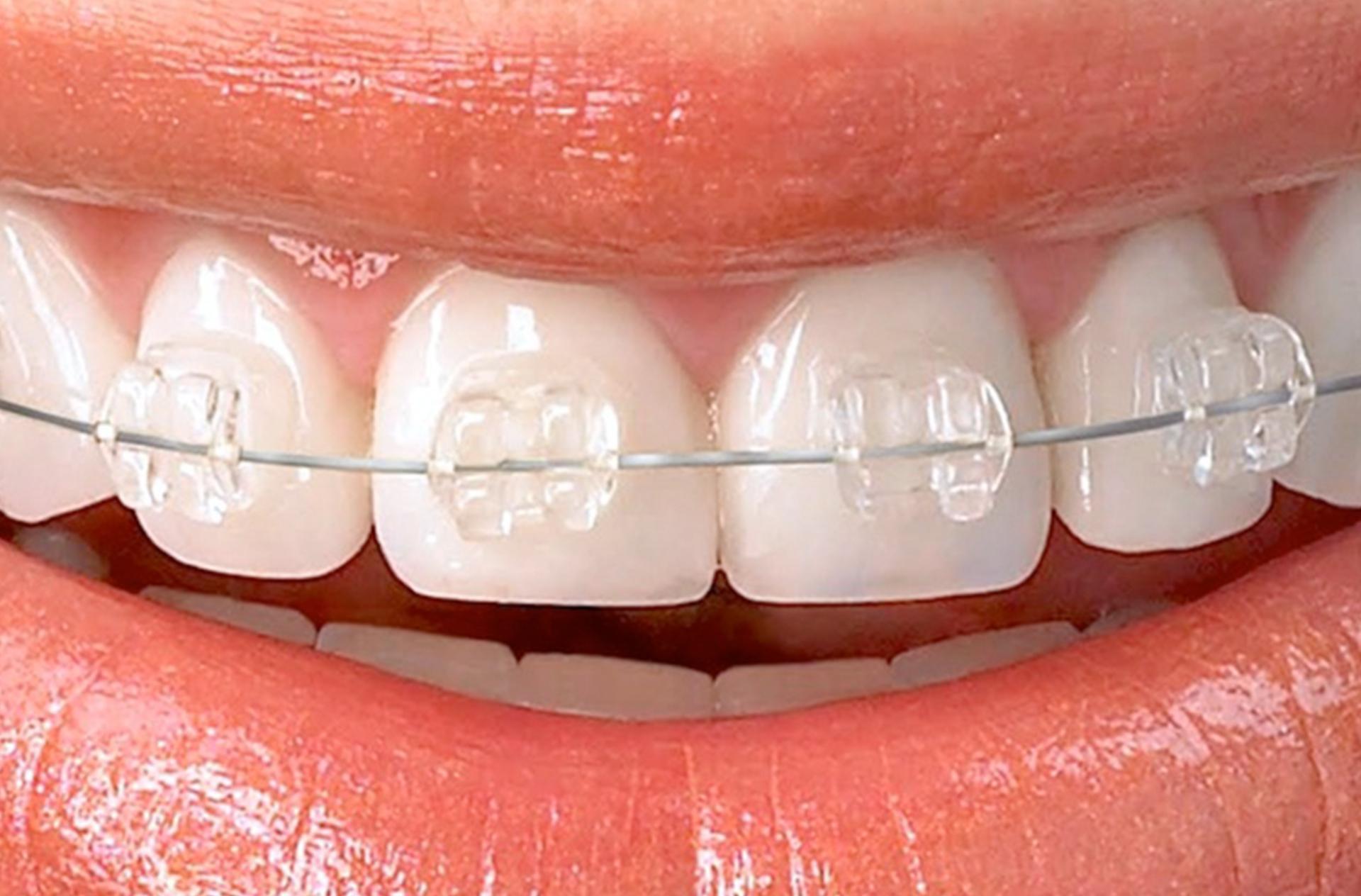 Fixed esthetic dental braces (one jaw)