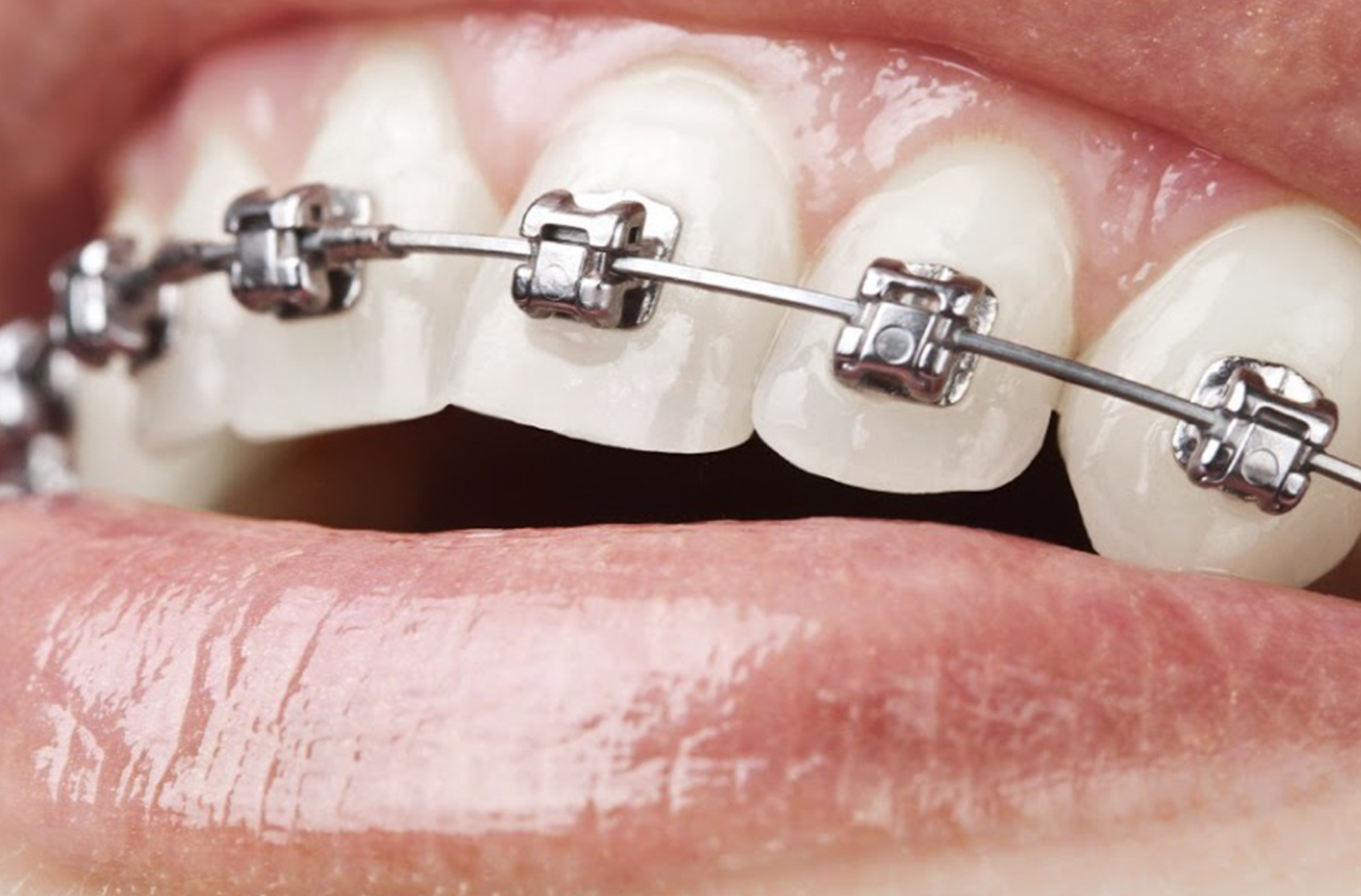 Fixed dental braces (one jaw)