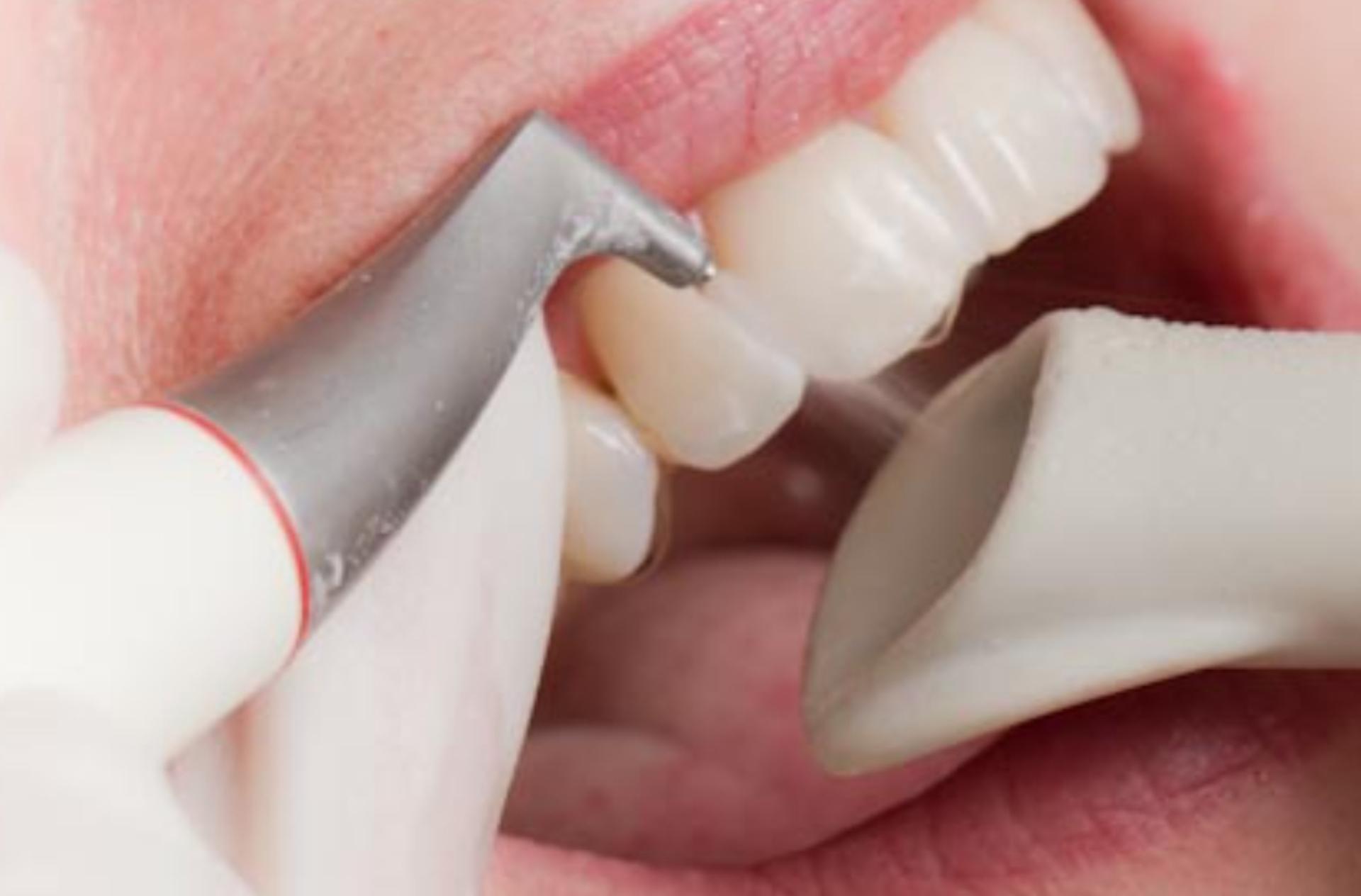 Tooth fluoridation