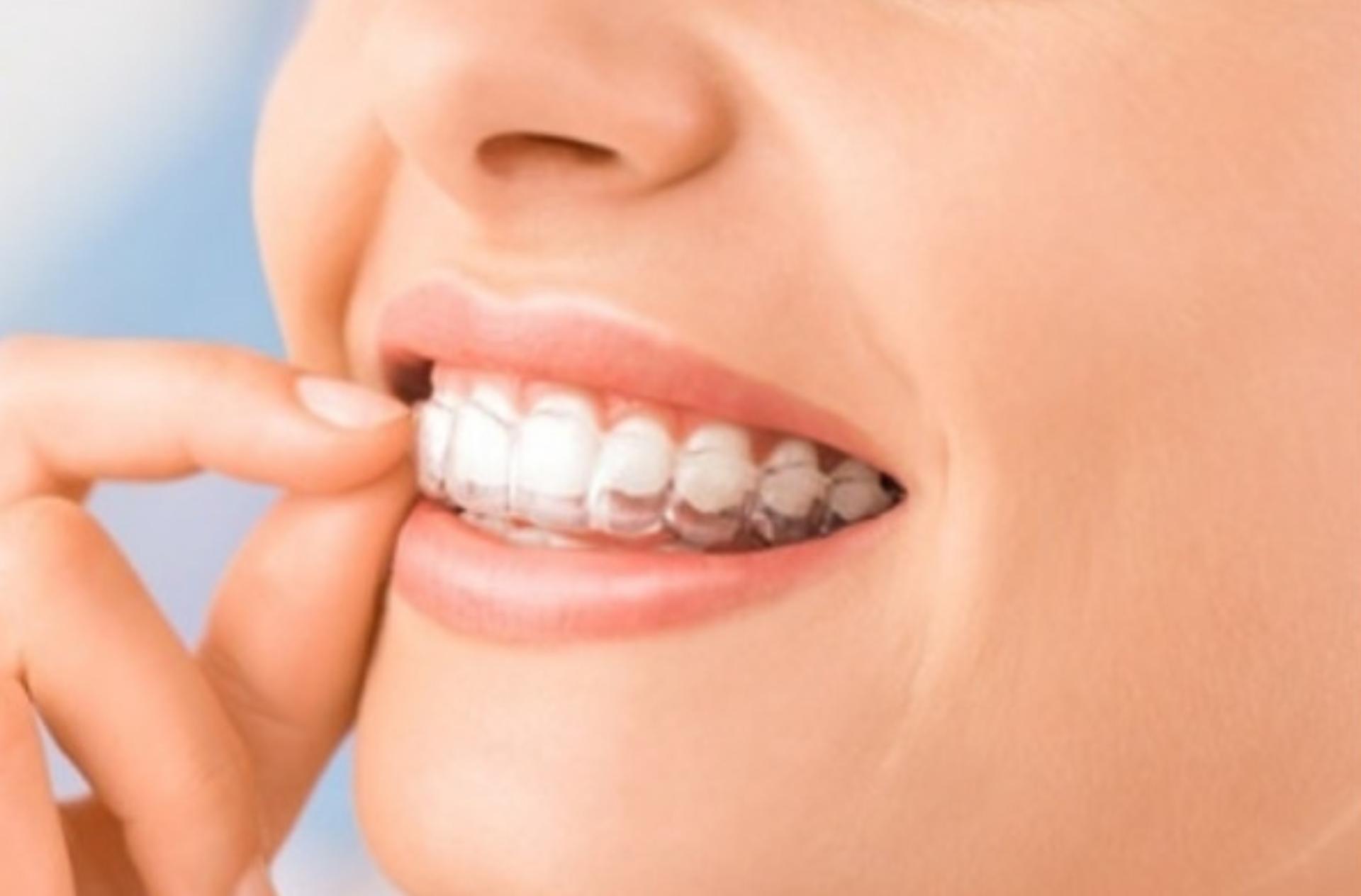 Invisaligne Teen Orthodontic Appliance
