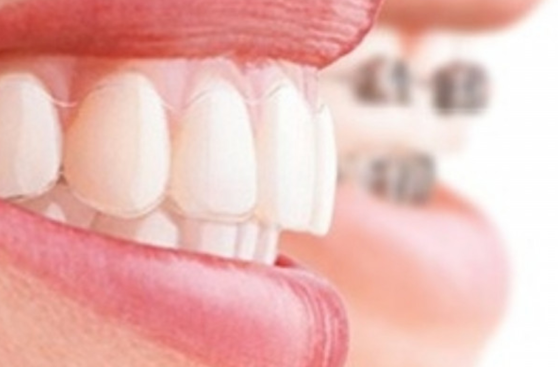 Invisaligne i7 orthodontic appliance