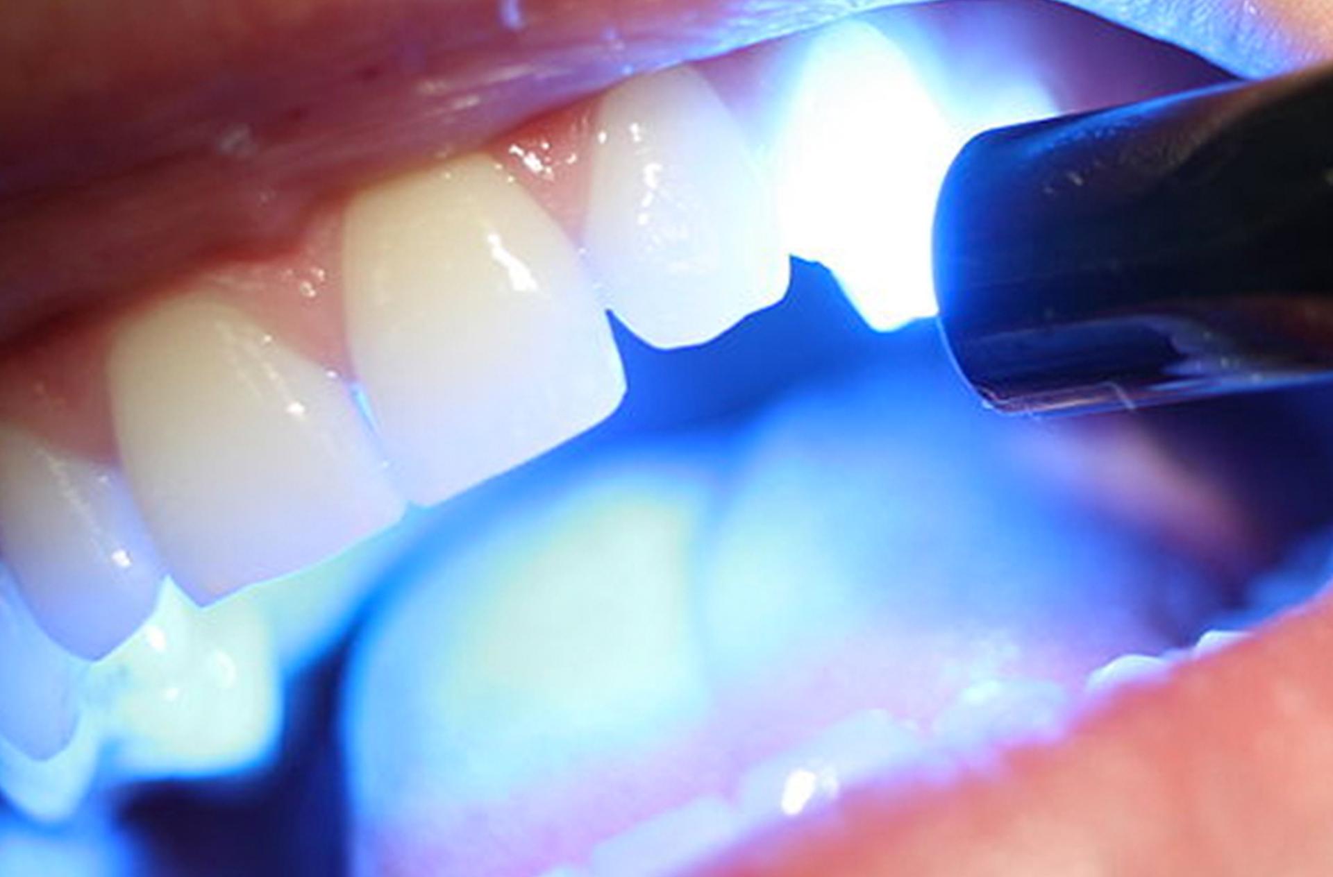 Izbeljivanje zuba laserom
