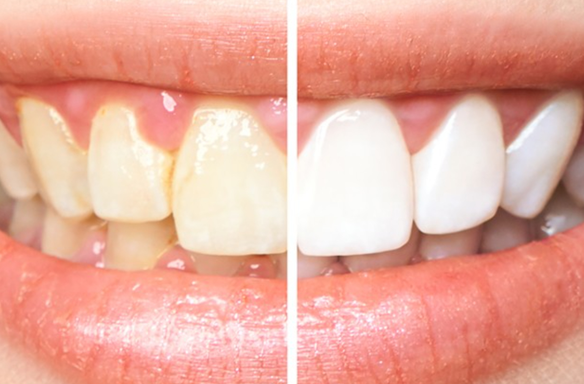 Causal therapy of periodontitis