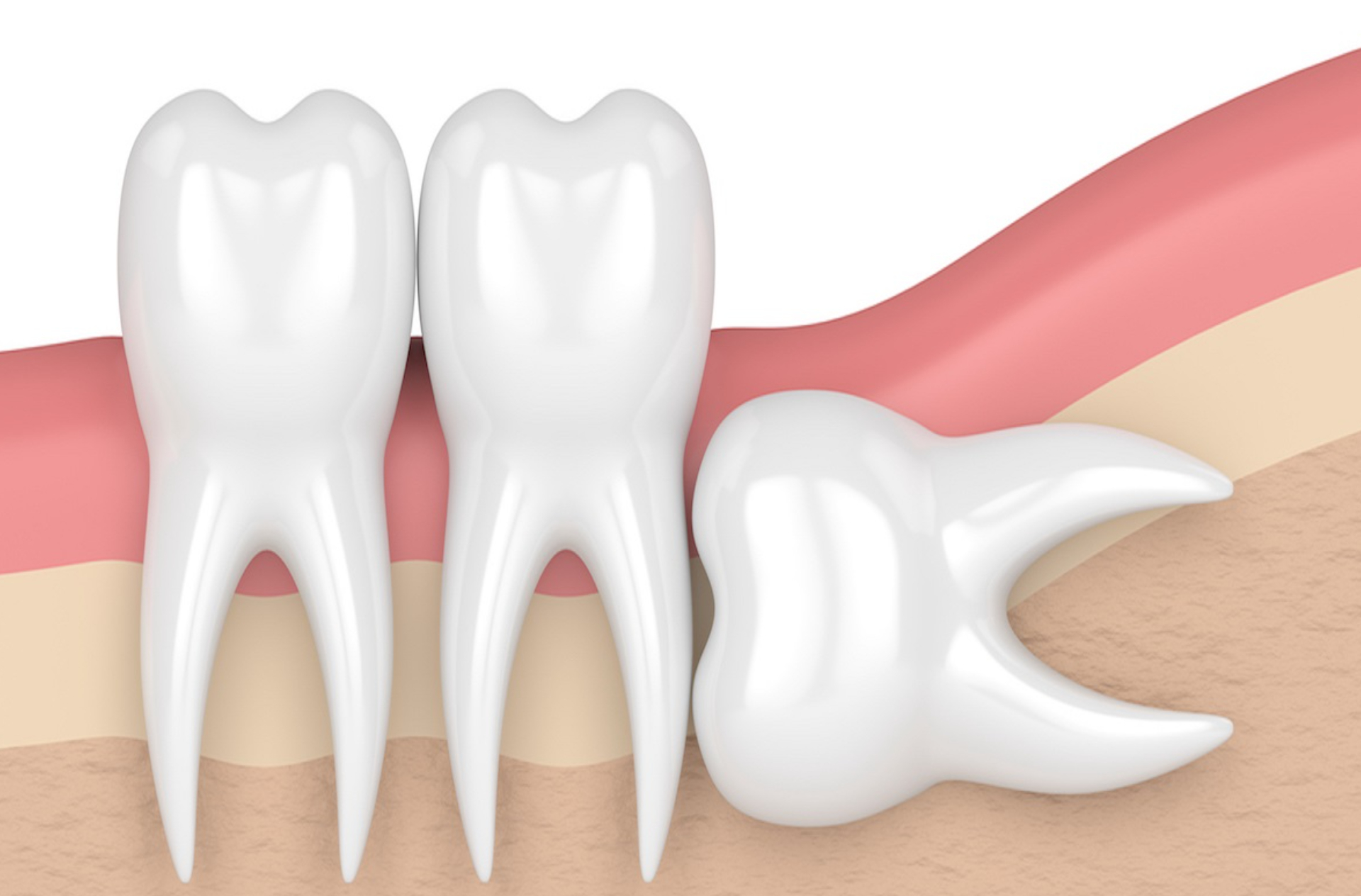 Komplikovano vađenje zuba