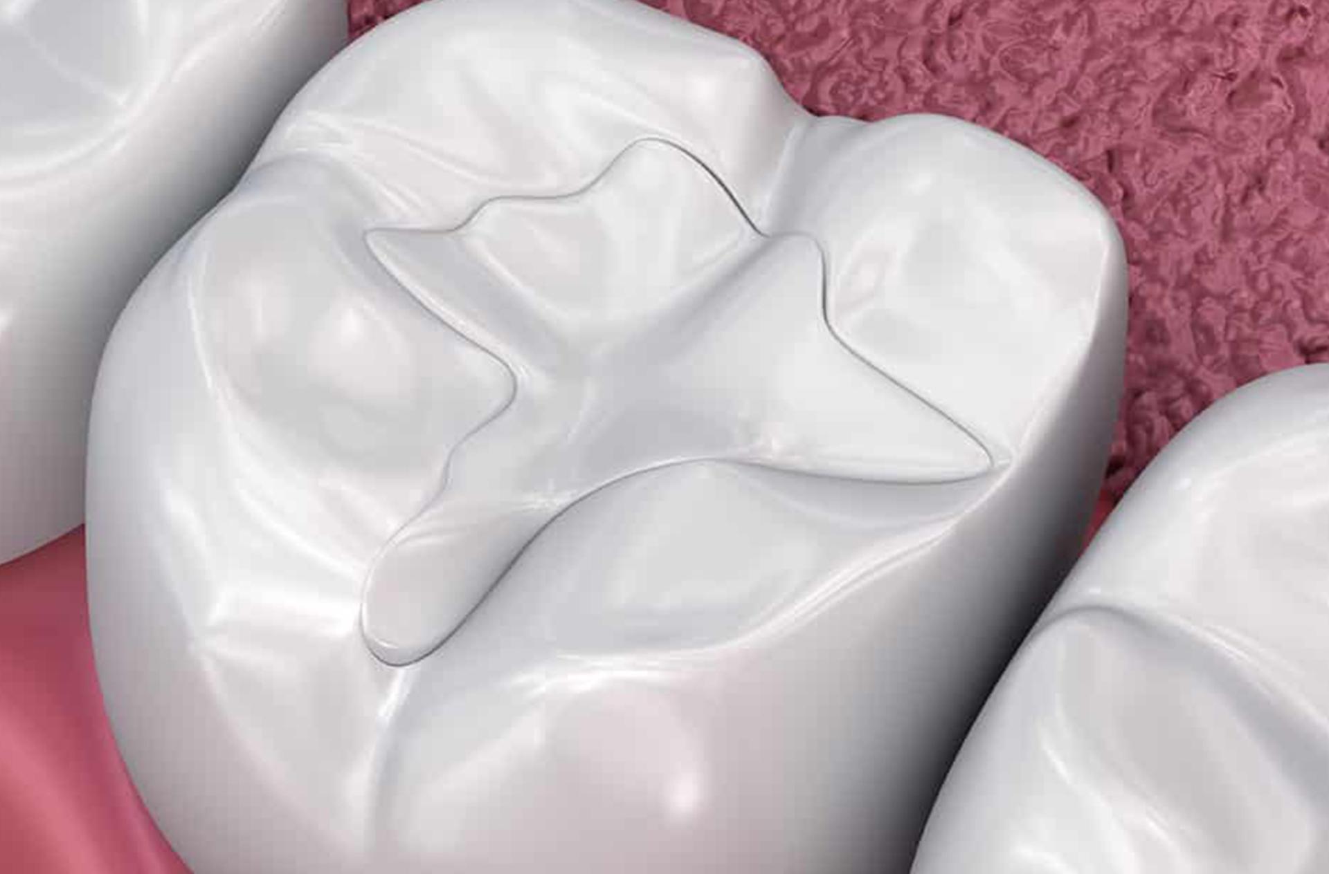 Composite fillings (white fillings)