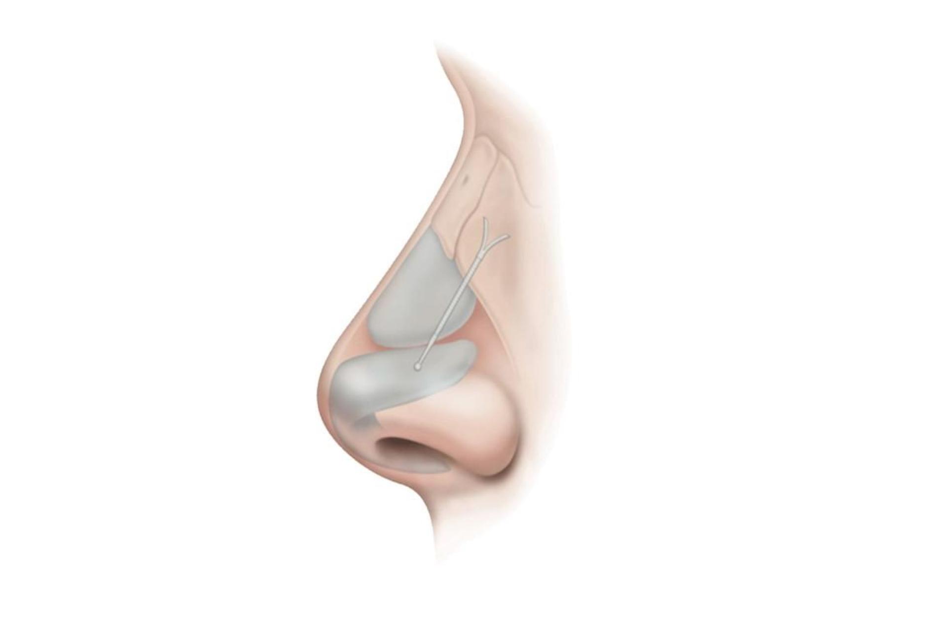 Nasal implant