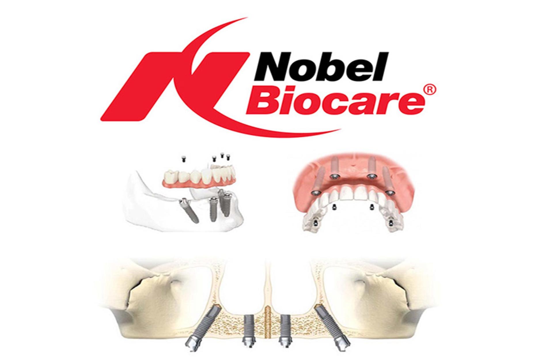 Nobel Biocare implant insertion