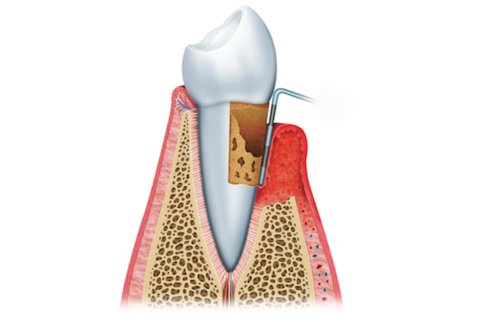 Periodontal pocket treatment