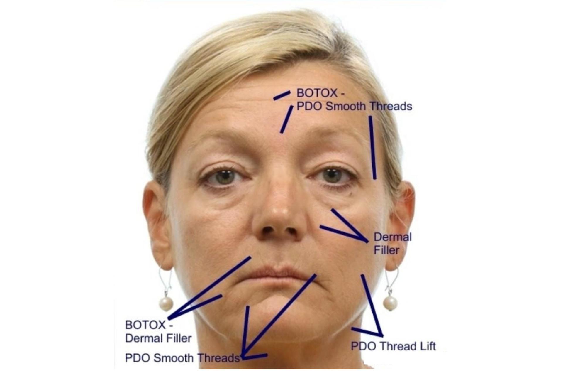 PRF facial skin regeneration (Vampire face lifting)