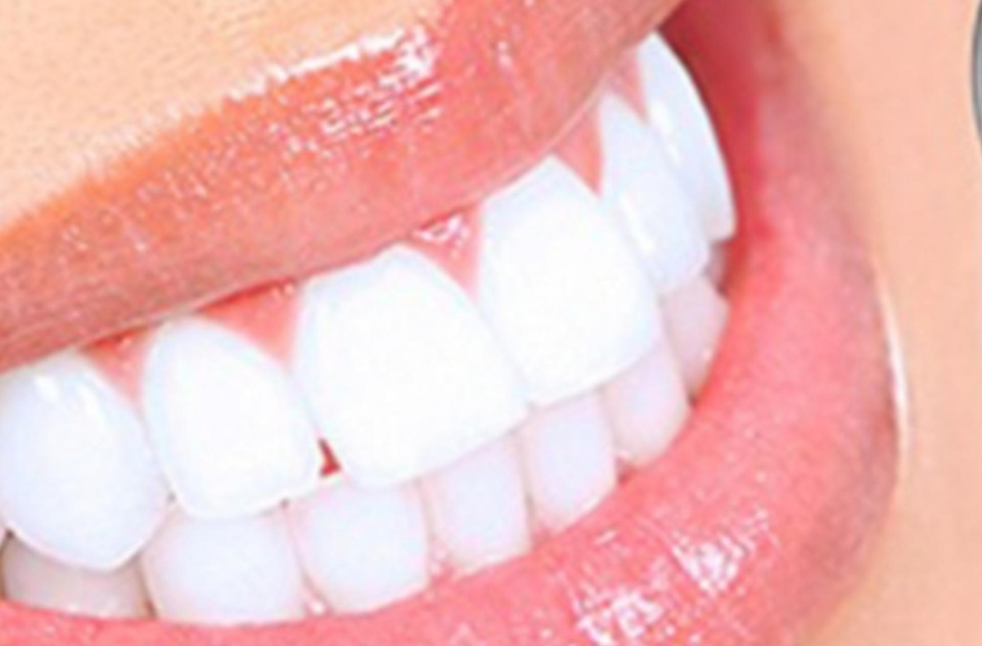 Profesionalno izbeljivanje svih zuba