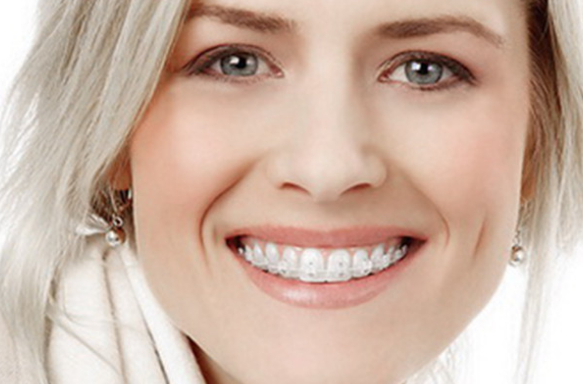 Self-ligating brackets: In-Ovation (esthetic - one jaw)