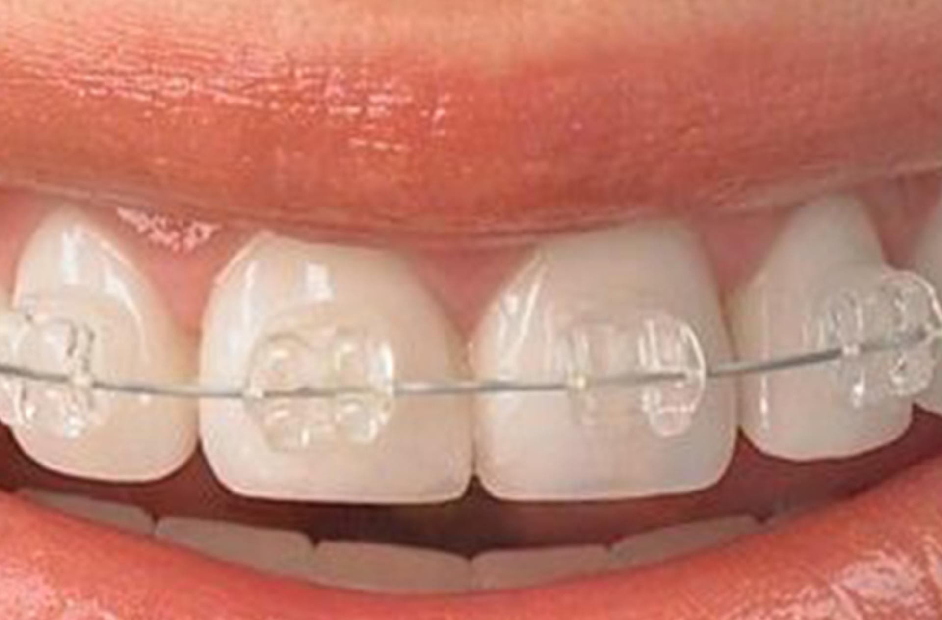 Self-ligating brackets: Quick (esthetic - one jaw)