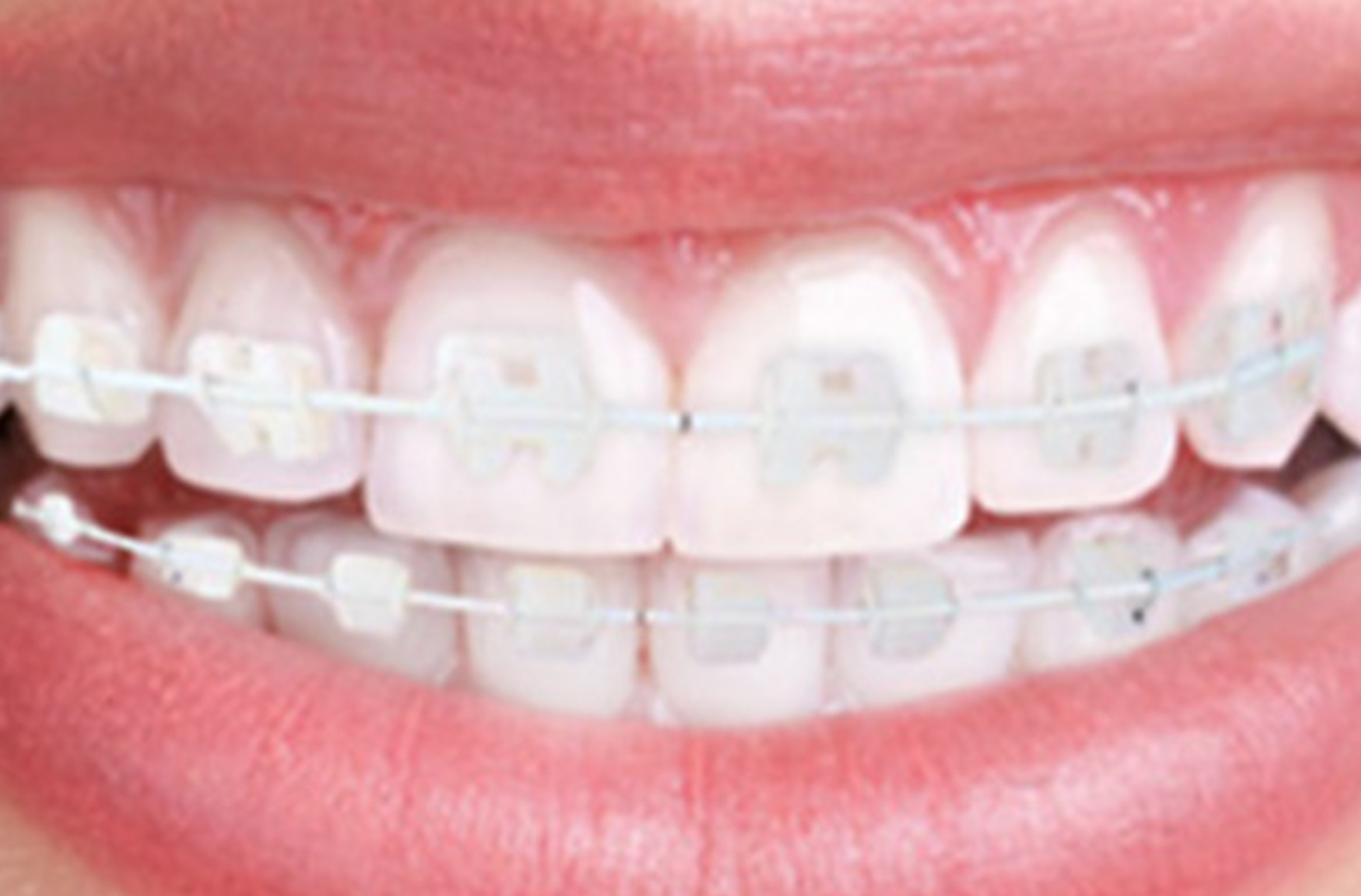 Fixed orthodontic appliance therapy (ceramic brackets)