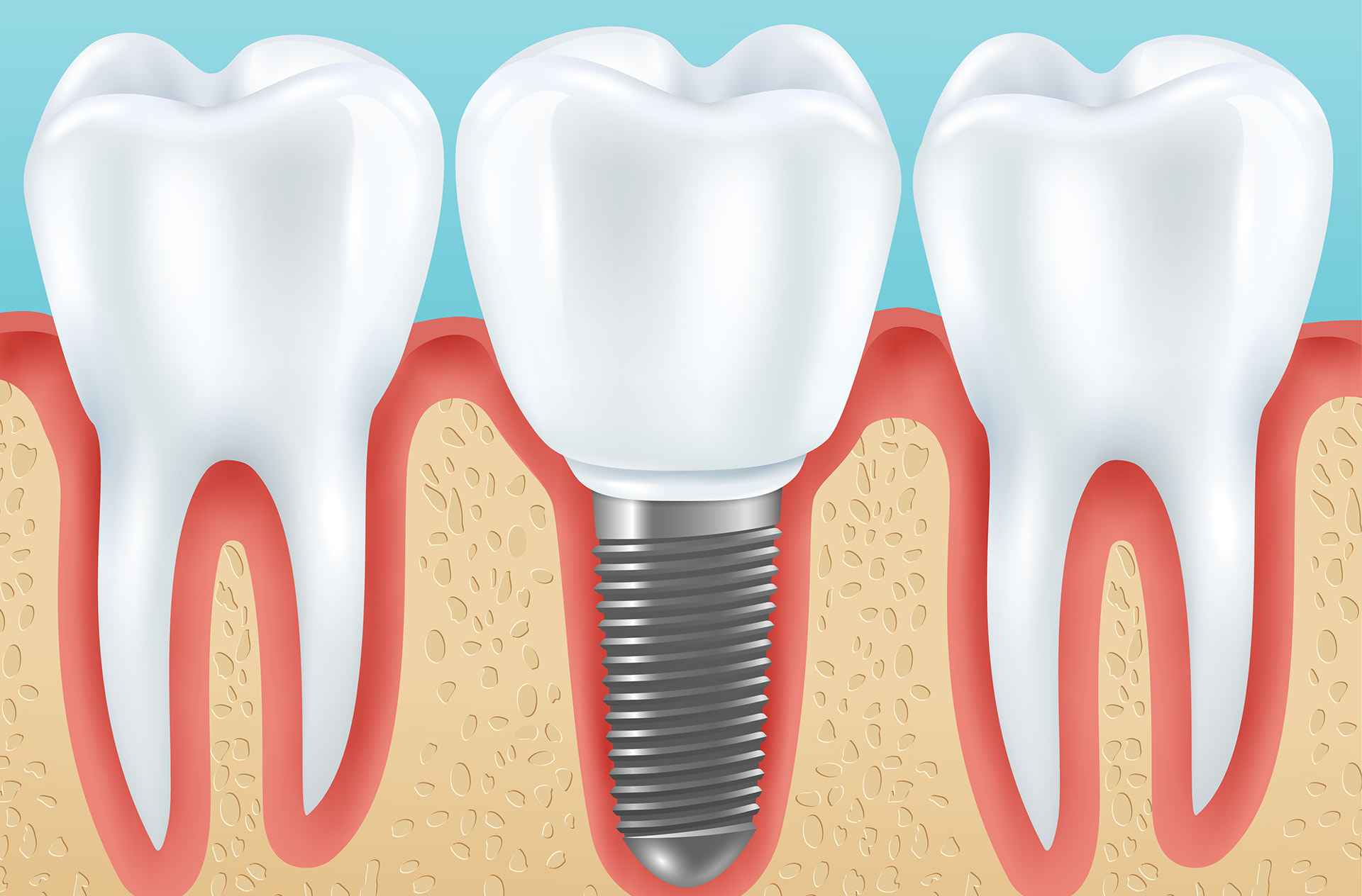 Oral surgery implantology