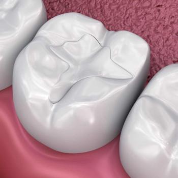 Zahnarztpraxis A2 - Kompositfüllung (weiße Plombe)