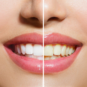 Nothing without a smile - Removal of dental calculus