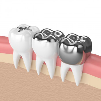 Amalgam fillings (black filling) - Dental center Ledikdent
