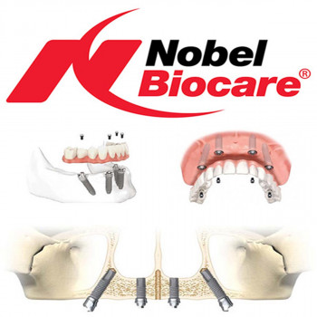 PerioDent - Nobel Biocare implant insertion
