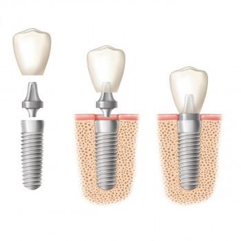 Abutment  - Zahnarztzentrum Dentics