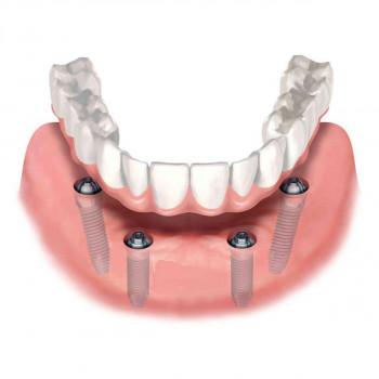Dental Cross -  All on 4 (porcelain teeth)