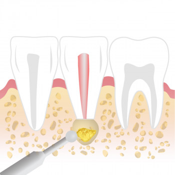 Dental clinic TIM - Apicoectomy