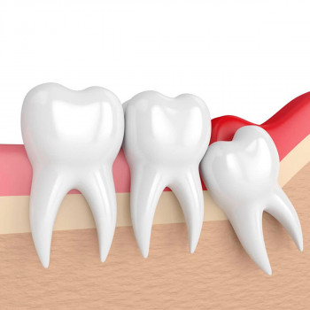 Dental Center Mimica - Alveolectomy