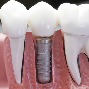 Implant insertion with abutment and metal ceramic crown - Dentist's office Jelovac