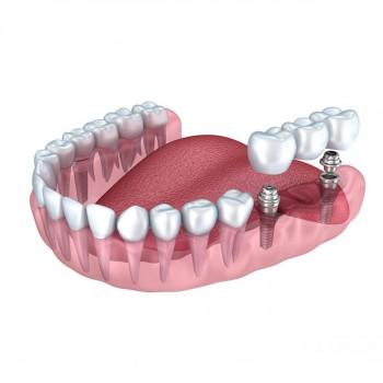 2x Implant + dental bridge with 3 crowns- Dentist's office Jelovac
