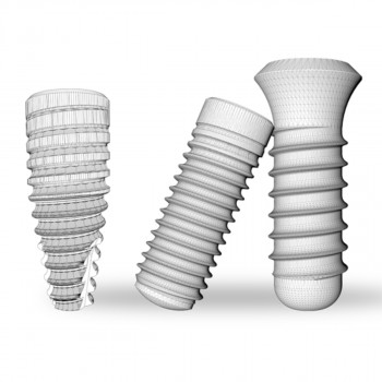 Videntis - Ugradnja implantata (Dental Ratio)