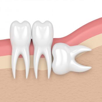 Videntis - Komplikovano vađenje zuba