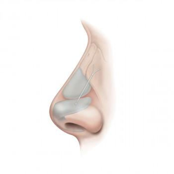 Zahnklinik dr. Vojin Pašić  - Nasal implant