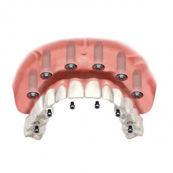 Apostoloski Dental Centar - Alle auf 6 (Metallkeramikkronen) - Straumann-Implantat