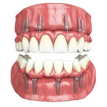Implant Centar Martinko - All on 5 in zircon