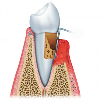 Dental practice Dr AST - Periodontal pocket treatment