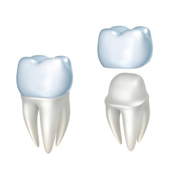 dr. Antonić, specialist oral surgery clinic - Non-metal crown