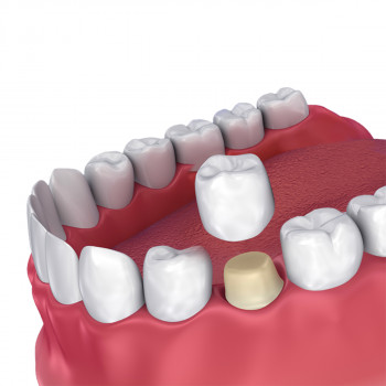 Nothing without a smile - Zirconium crown