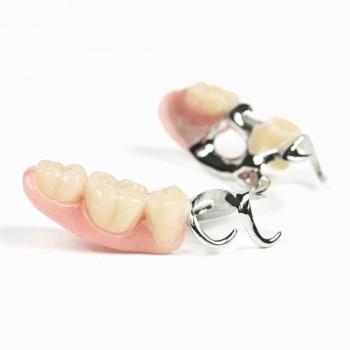 Dental Clinic Širbegović - Composite fillings (white fillings) - Wironit simple dentures