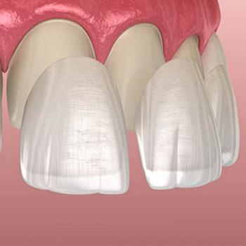 Dentas - Porcelain laminates (Veneers)