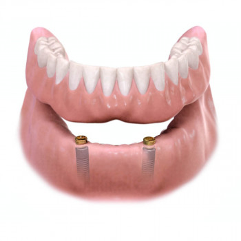 A-dent - Denture supported by 2 implants with locators (Hybrid Dentures)