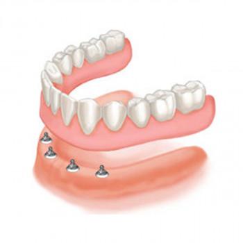 Dental Clinic dr Katarina Bilbija - Denture supported by 4 implants with locators (Hybrid Dentures)
