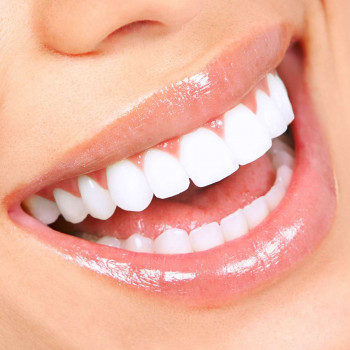 Dental clinic TIM - Denture supported by 4 implants with locators (Hybrid Dentures)
